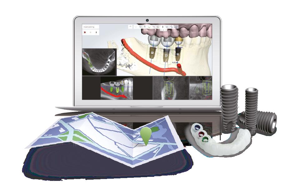 فرایند کاشت ایمپلنت به روش دیجیتال