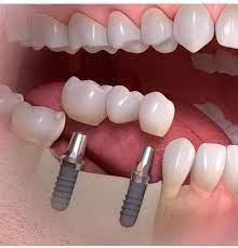 دندانپزشکی دیجیتال